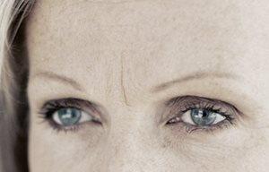 eucerin sc ageing skin wrinkles 03 - Beneficios del ácido hialurónico.